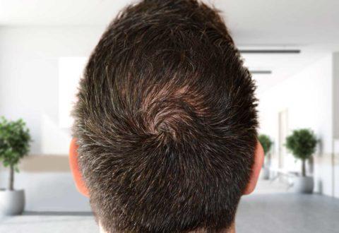 Hair transplant crown Technique