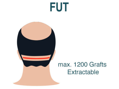Hair Transplant Fut Technique