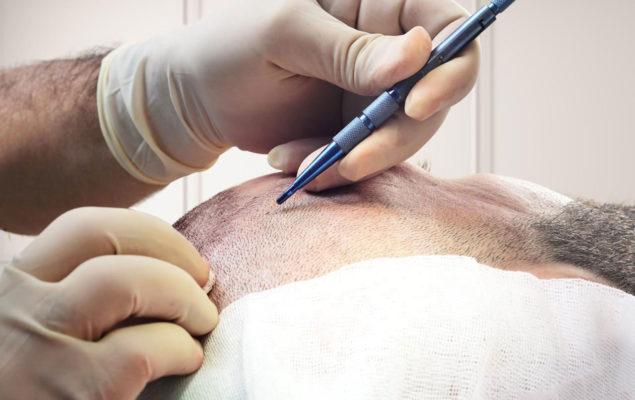 Hair Transplant Sapphire Method