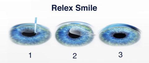 Relex Smile Turkey